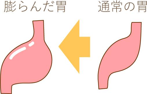 胃の比較画像